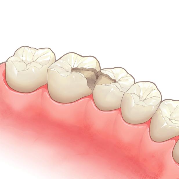 型取りされている奥歯のイラスト