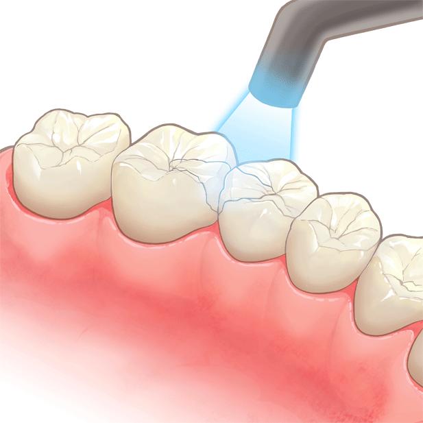 ライトで固められている奥歯のイラスト
