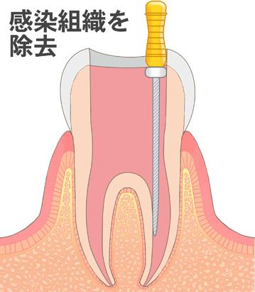 神経を取っている途中の歯のイラスト