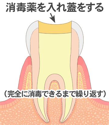根っこの穴を広げている歯のイラスト