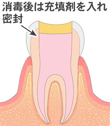 神経の代わりに薬を入れられた歯のイラスト