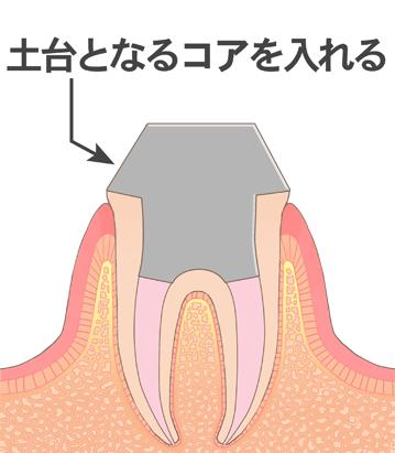 土台となるコアを入れられた歯のイラスト
