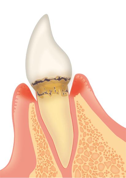 縁下歯石が多い歯